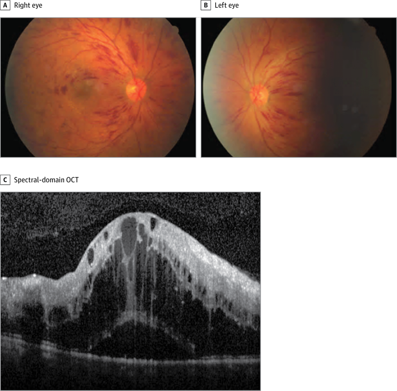 A and B, Fundus photographs demonstrating macular edema, prominent flame hemorrhages, and a mild tortuosity of the retinal venules. C, Spectral-domain optical coherence tomography (OCT) of the right eye with subretinal fluid and macular edema. Central macular thickness, 1095 μm.