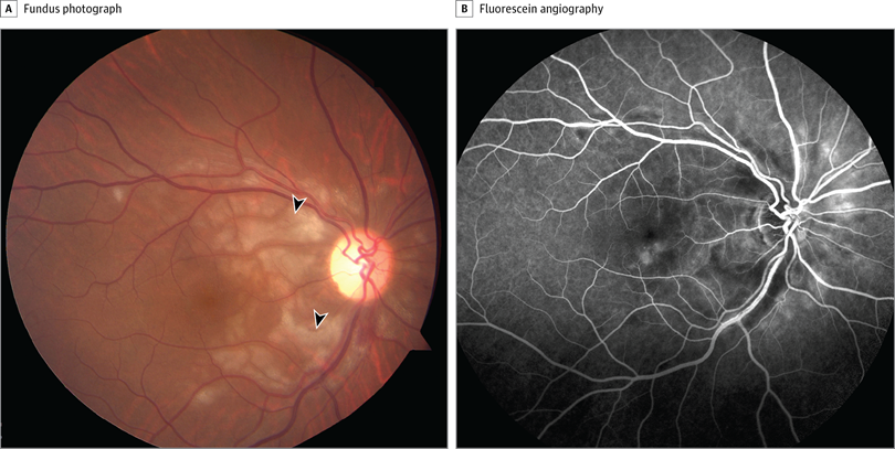 Fundus photograph (A) and late-phase frame fluorescein angiography (B) of the right eye. Arrowheads indicate areas of retinal opacification.