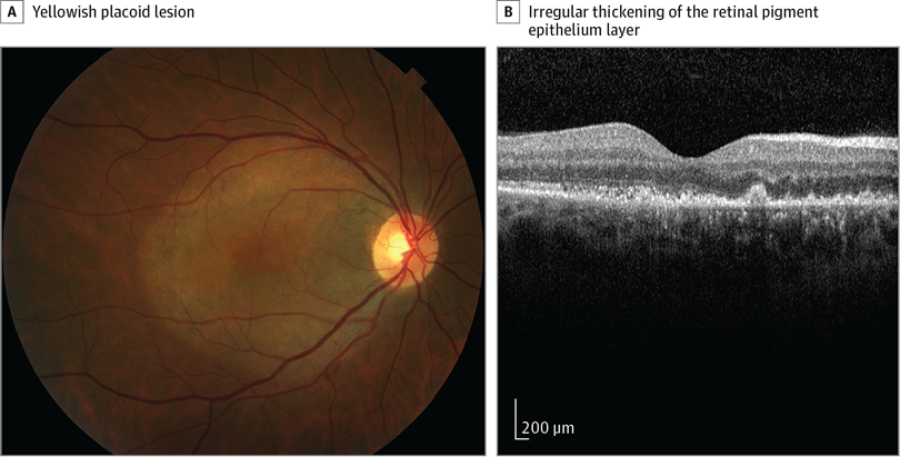 A, A fundus photograph illustrates a yellowish placoid lesion. B, Optical coherence tomography demonstrates an irregular thickening of the retinal pigment epithelium layer with small nodular elevations.