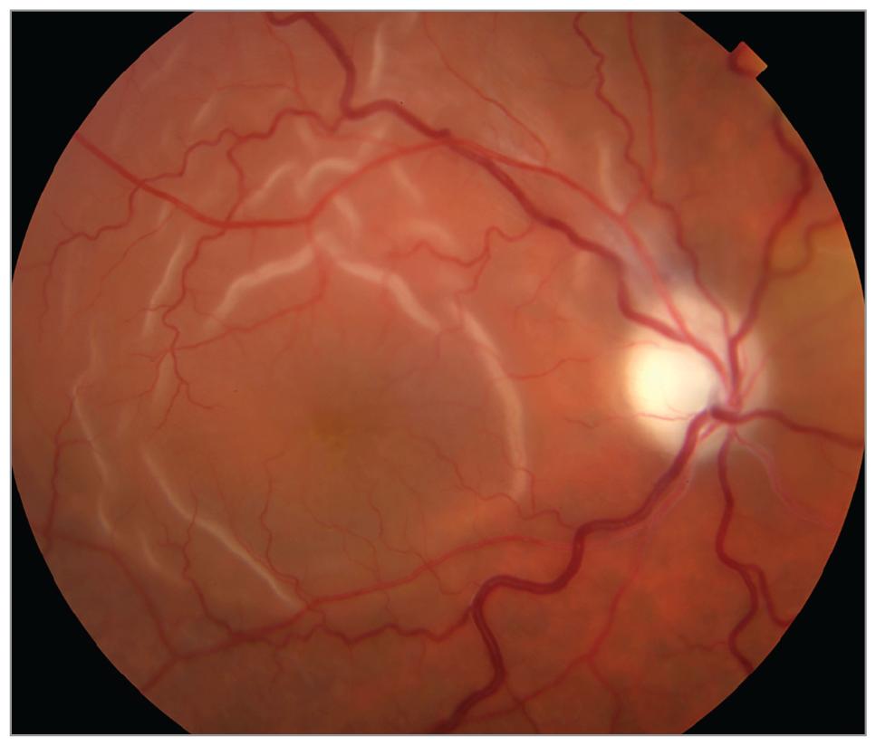 Retina Folds And Subretinal Fluid After Bell Palsy Facial Nerve