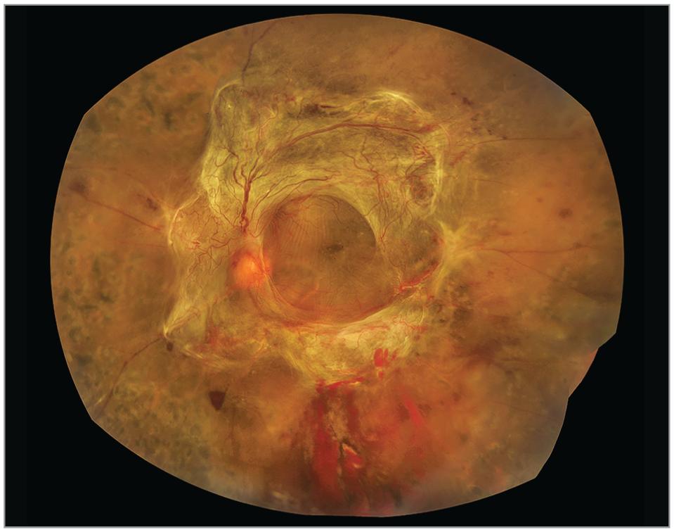 6c370b3af0f Montaged color fundus photograph of diabetic tractional retinal detachment