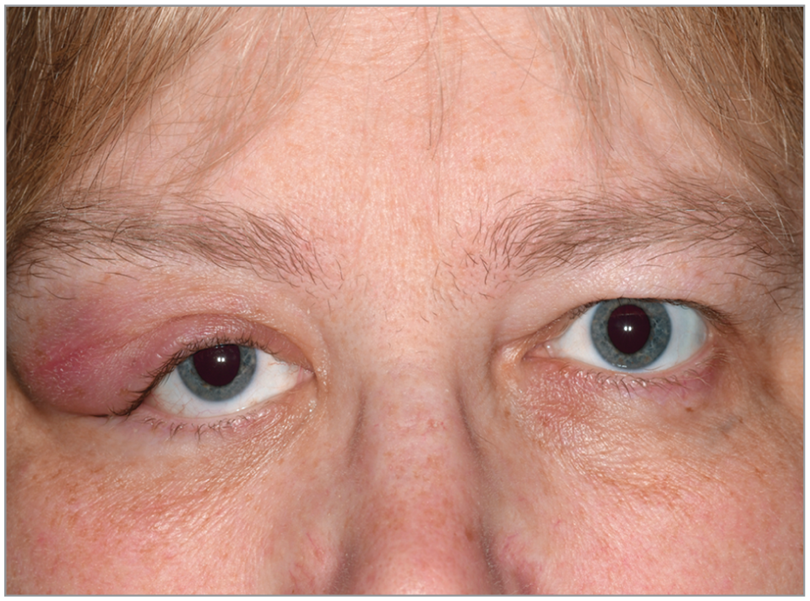Color photograph depicting swelling over the right lacrimal gland region with intact epidermis and absence of inflammatory signs.