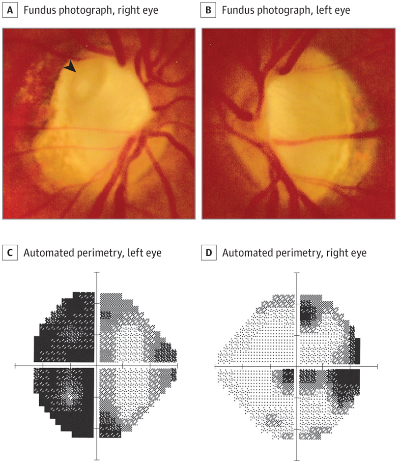 Optic Nerve Cupping: Visual Field Loss In A Patient With Optic Disc Cupping