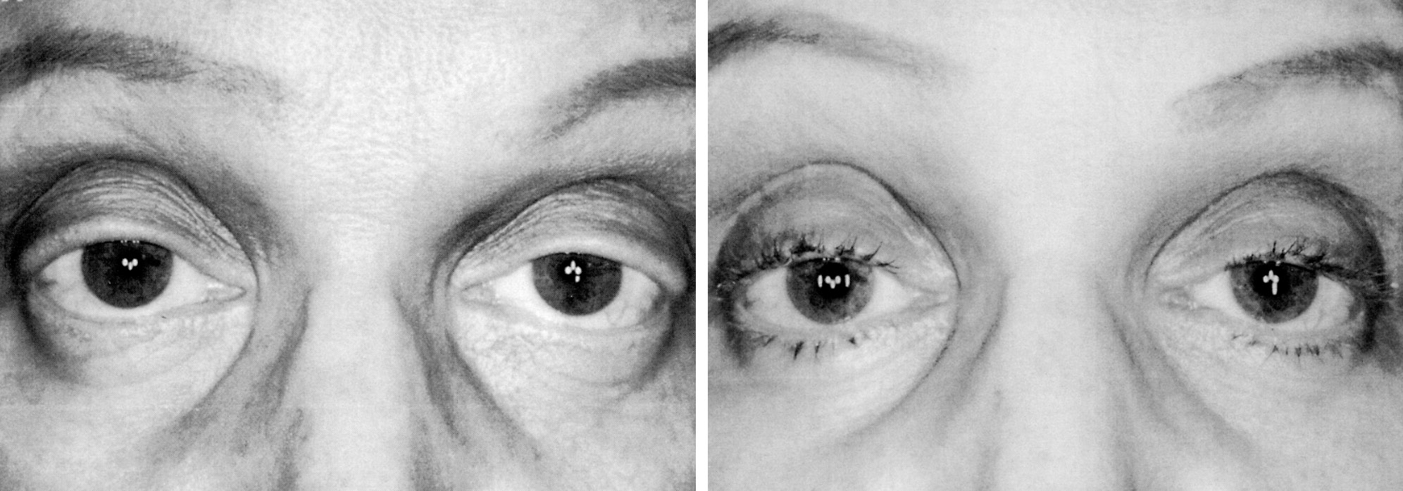 Eyelash Formation Secondary To Latanoprost Treatment In A Patient