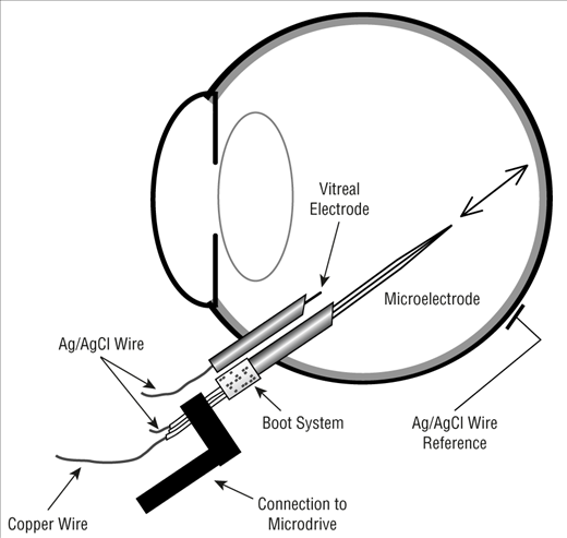 Retinal Oxygen: Fundamental and Clinical Aspects