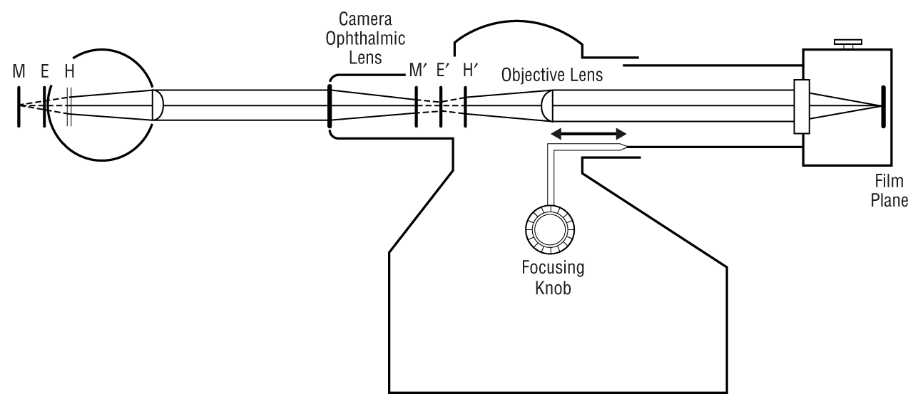 A New Fundus Camera Technique to Help Calculate Eye-Camera