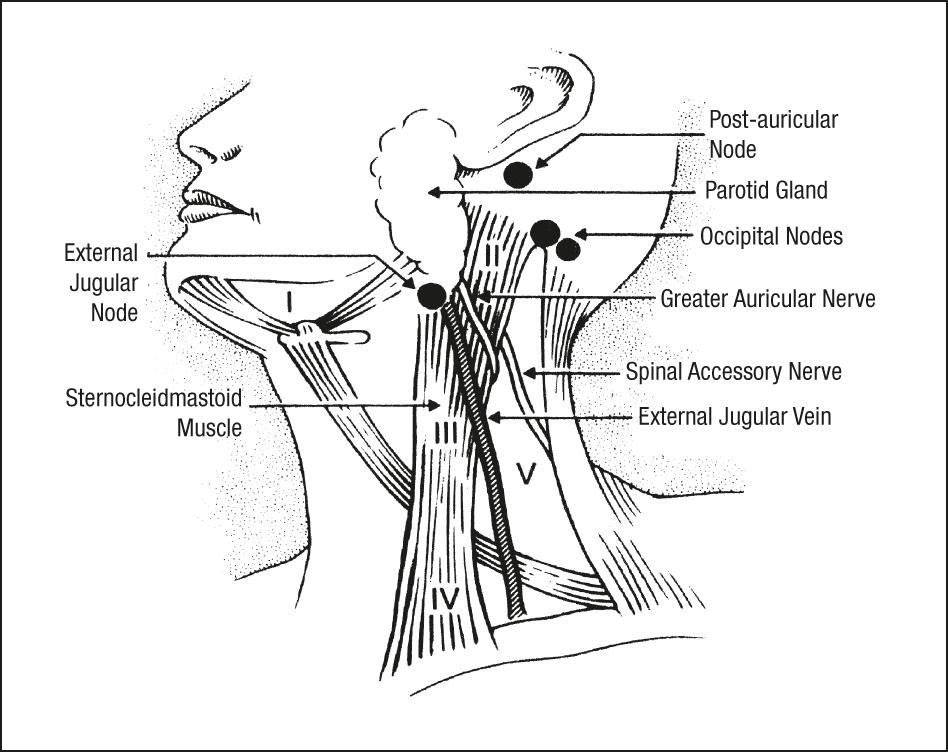 The Parotid Gland As A Metastatic Basin For Cutaneous Cancer