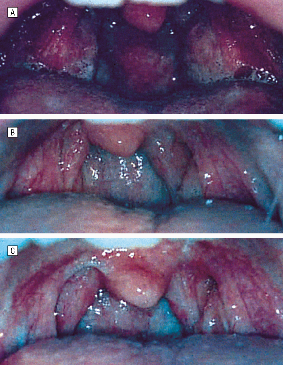 Temperature Controlled Radiofrequency Tonsil Reduction In Children
