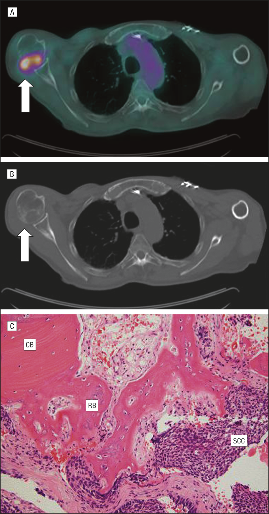 c45bd963361 Positron emission tomography–computed tomography scans on the left showing  an area of focally increased
