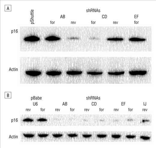 Short Hairpin RNA System to Inhibit Human p16 in Squamous