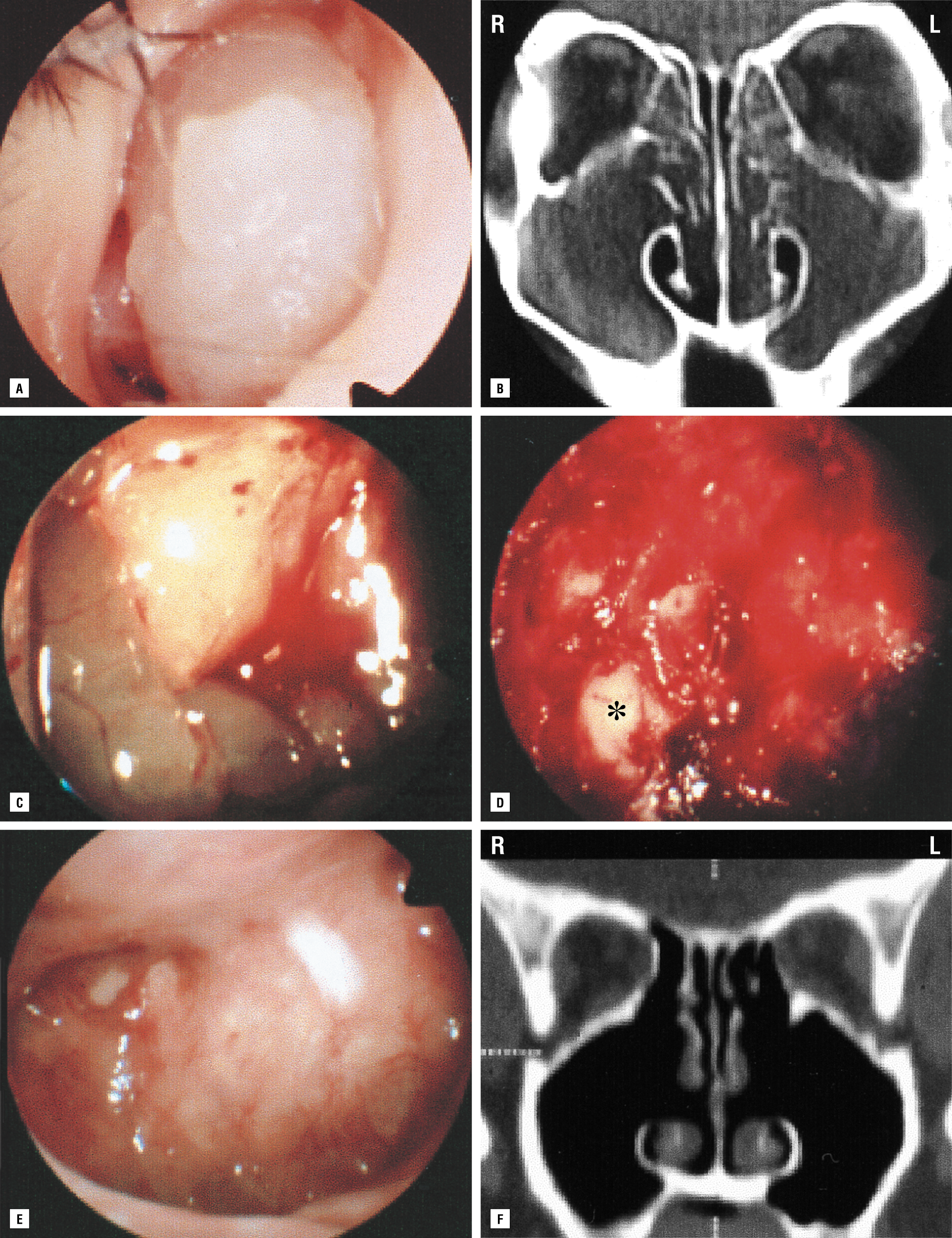 View Endoscopy Procedure: Treatment Of Intractable Diseased Tissue In The Maxillary