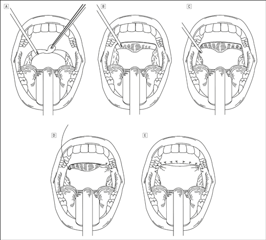 Microdebrider-Assisted Extended Uvulopalatoplasty: An