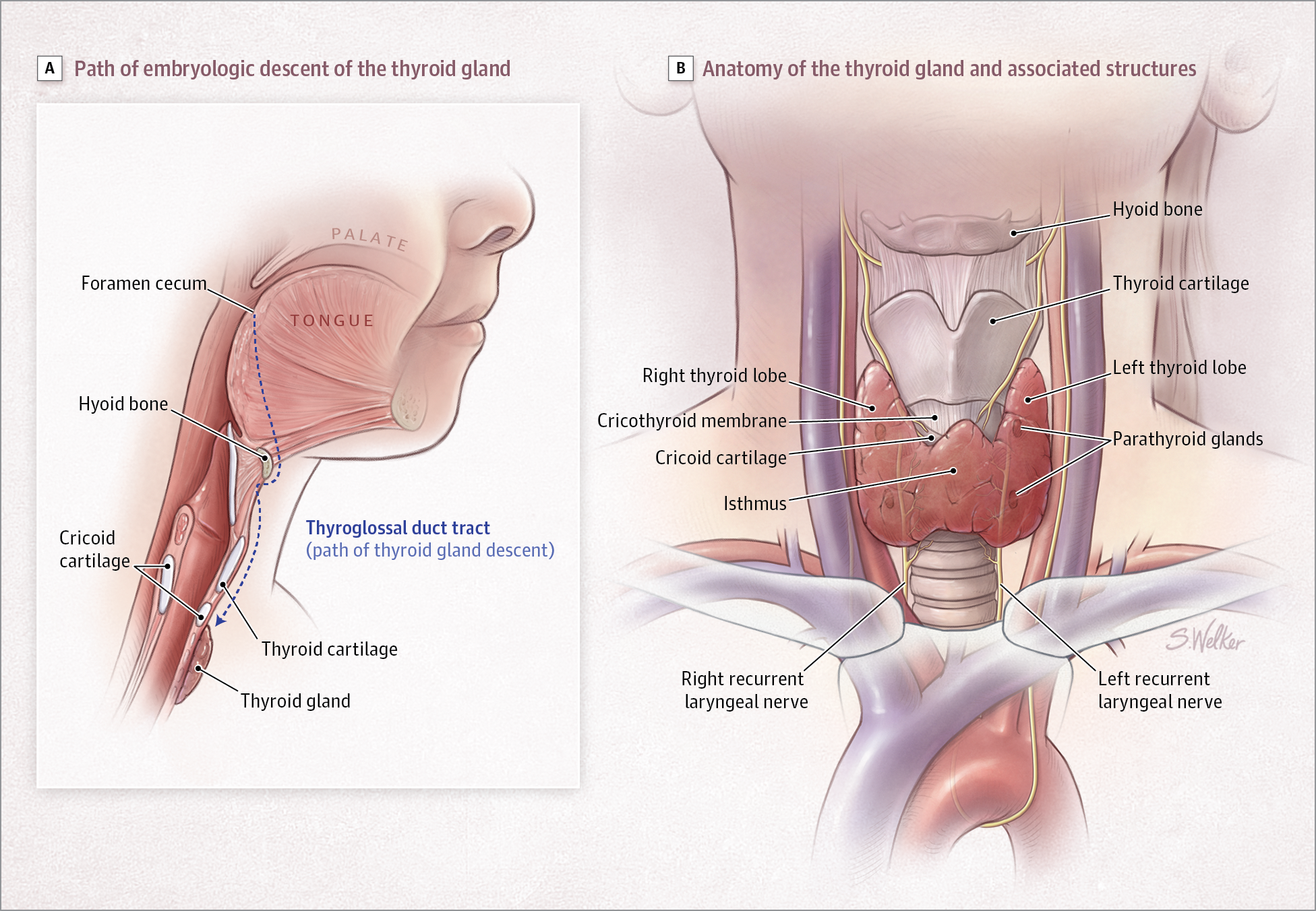 Thyroid Disorders In Children And Adolescents A Review