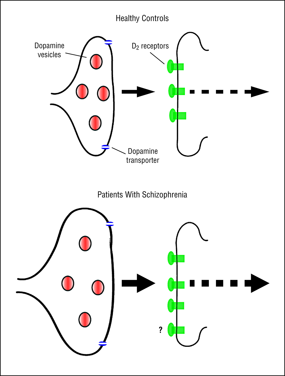 The Nature Of Dopamine Dysfunction In Schizophrenia And What This