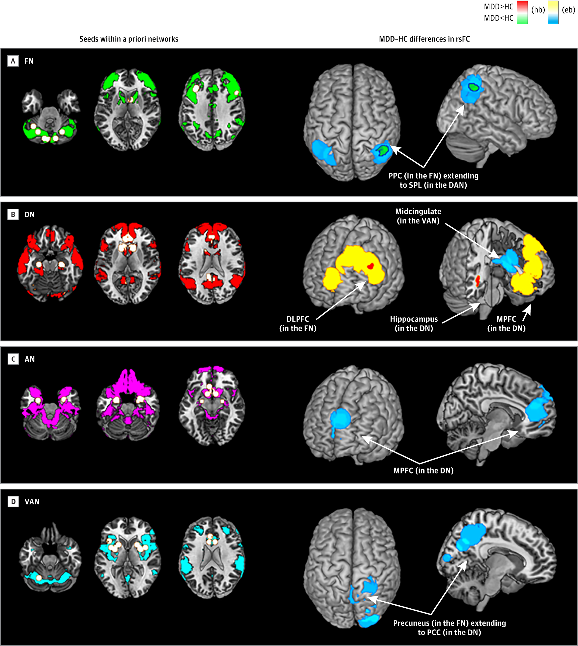 Large Scale Network Dysfunction In Major Depressive Disorder A Meta