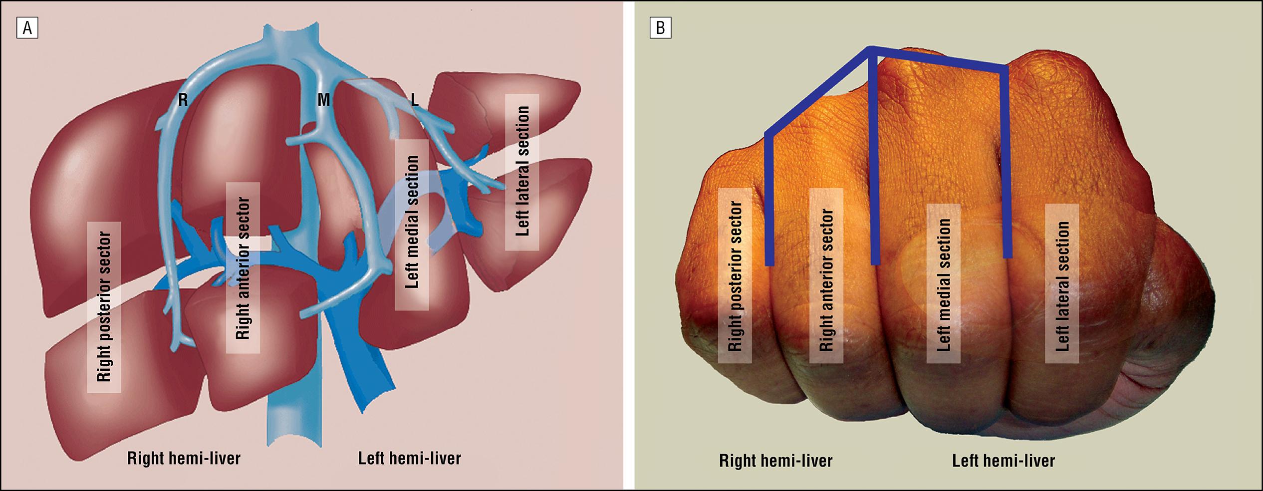 A Handy Tool To Teach Segmental Liver Anatomy To Surgical Trainees
