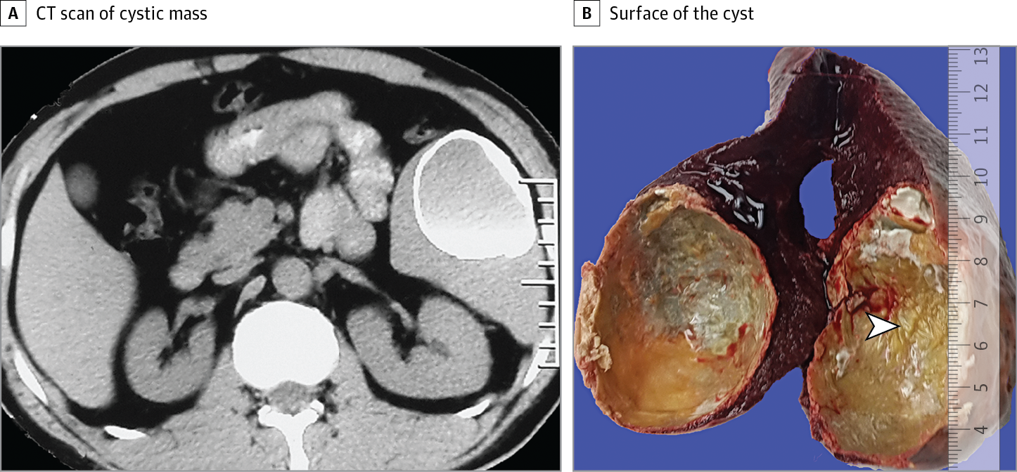 Calcified Cyst In The Spleen Surgery Jama Surgery Jama Network