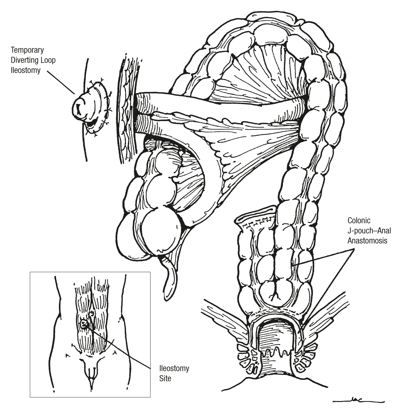 Proctectomy and Coloanal Anastomosis for Rectal Cancer
