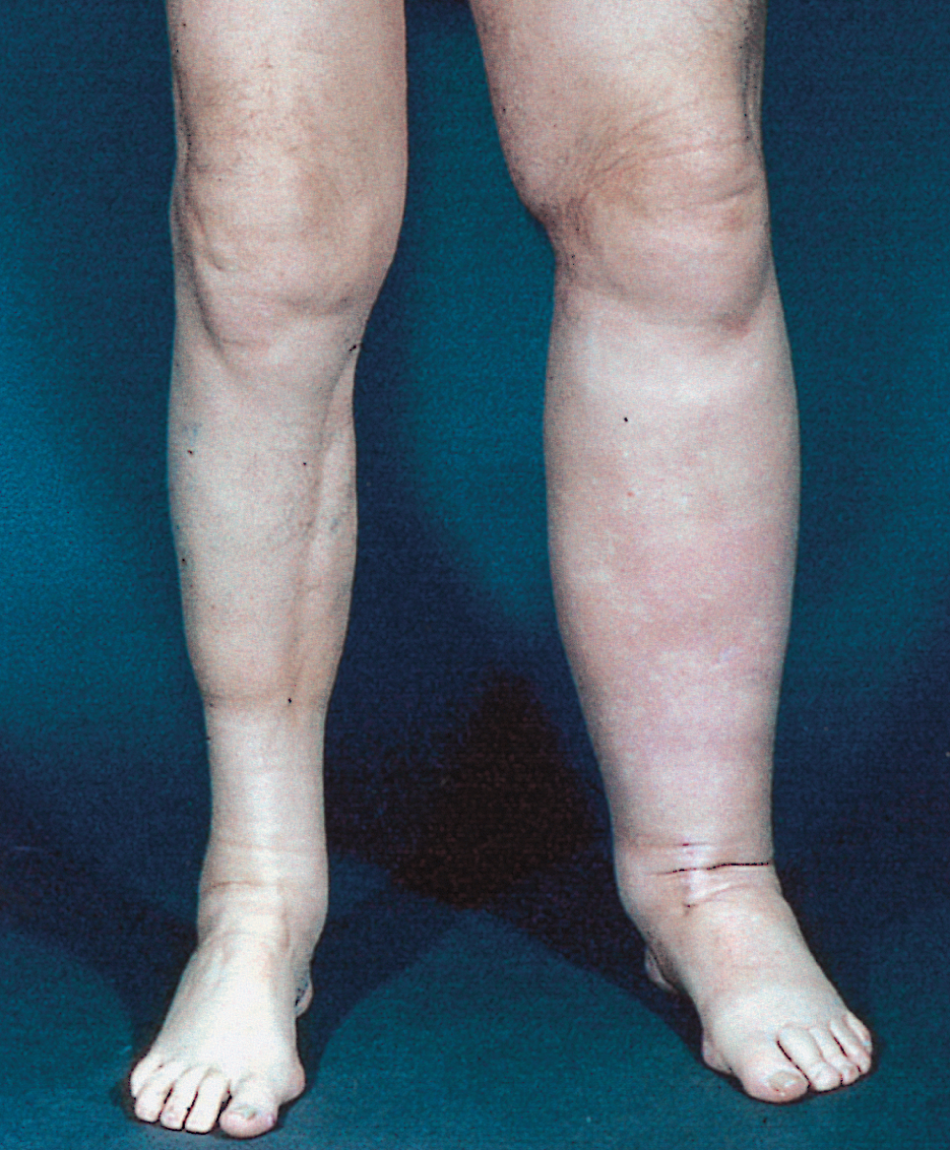 Differential Diagnosis Investigation And Current Treatment Of