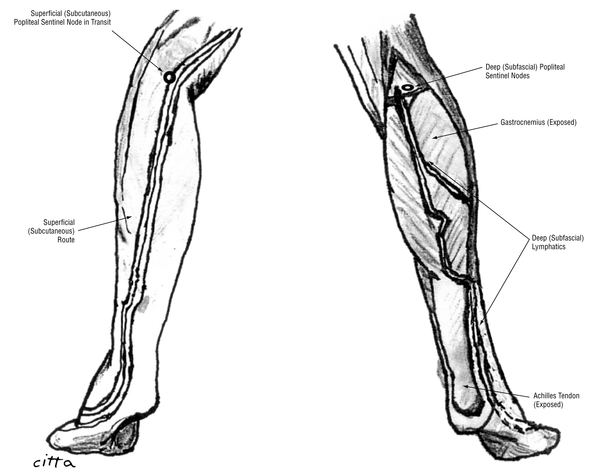 Lymphatic Drainage To The Popliteal Basin In Distal Lower Extremity